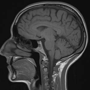 Koponya MR vizsgálat